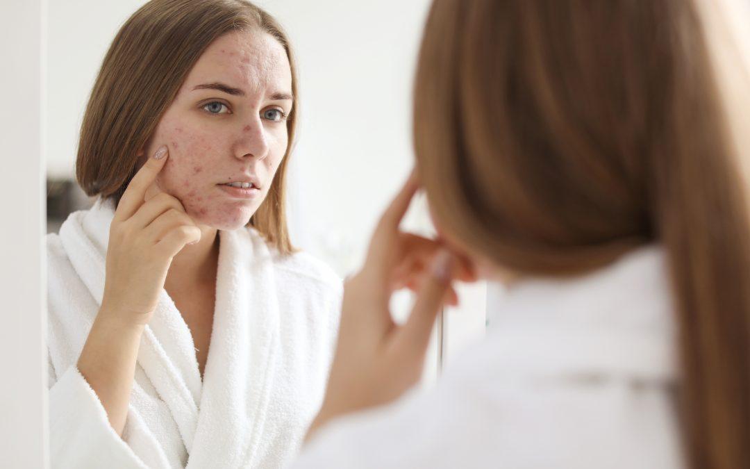 Akne und unreine Haut aus der Sicht der TCM